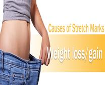 WEIGHT LOSS/GAIN TREATMENT