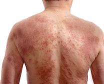 SKIN ALLERGY TREATMENT