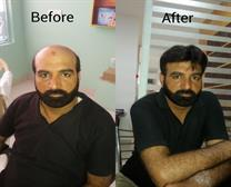 BEST HAIR TRANSPLANT CLINIC