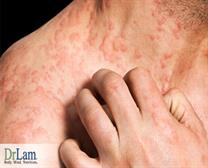 Best Skin Allergies Treatment