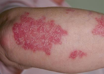 Psoriasis Treatment in Kaithal