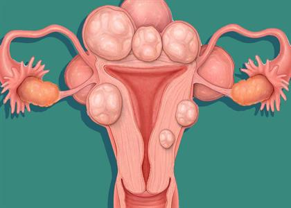 Fibroids Treatment in Kaithal
