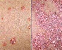 Best psoriasis Treatment in Kaithal