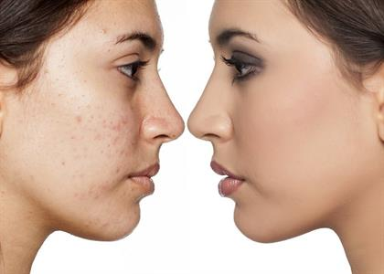 Pimples Treatment in Kaithal