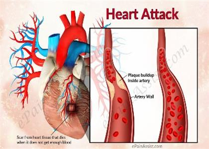 Heart Attack treatment In Jind